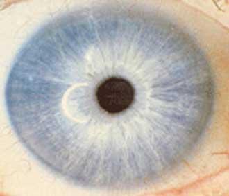 ojo linfático