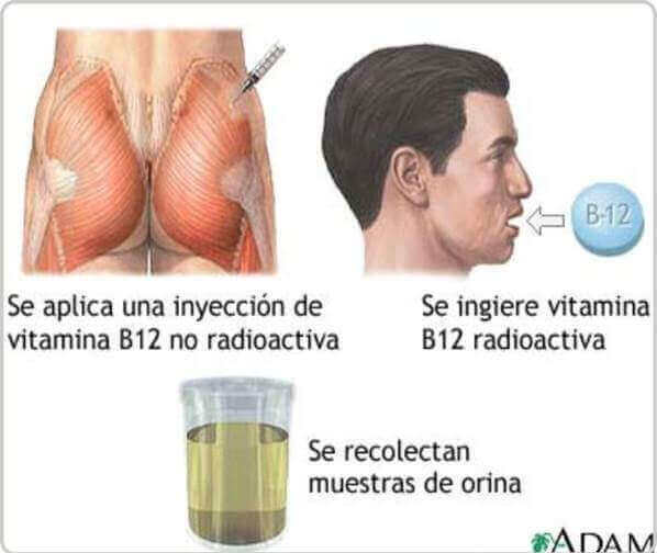 pruebas para la B12