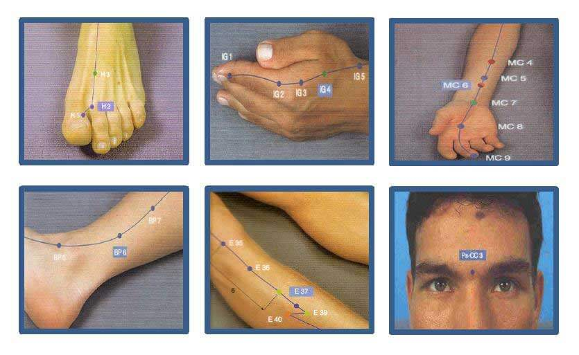 acupuntura adelgazar barcelona