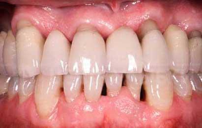 Acupuntura para la periodontitis